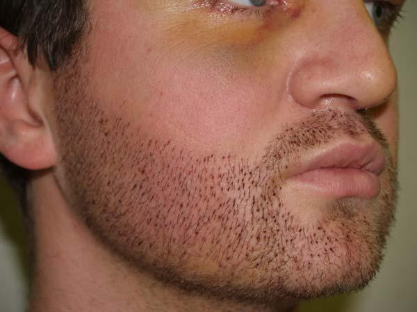 Exemple de greffe de barbe