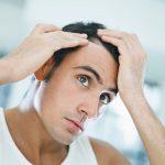 Quelles solutions pour hommes aux cheveux fins ?