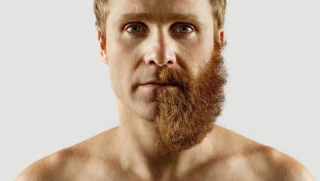 Trous dans la barbe : les solutions !