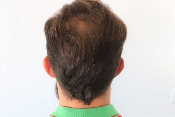 Cheveux clairsemés ?